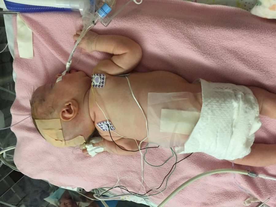 Emilia Emmie Boylan at the University of Iowa Childrens Hospital for her first shunt surgery.